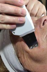 ultrasoon skinpeeler 1