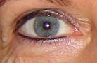 Eyeliners, 2 weken na behandeling.