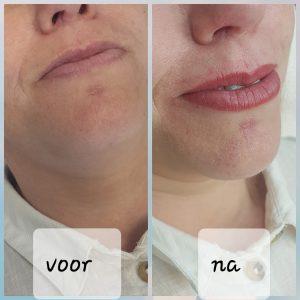 Permanent Make Up Full Lips